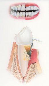 parodontitis-villa-westhof-tandarts