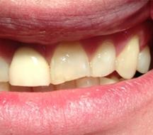 cosmetische-tandheelkunde-villa-westhof-voor-