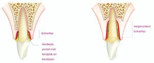 Gingivitis-voorkomen